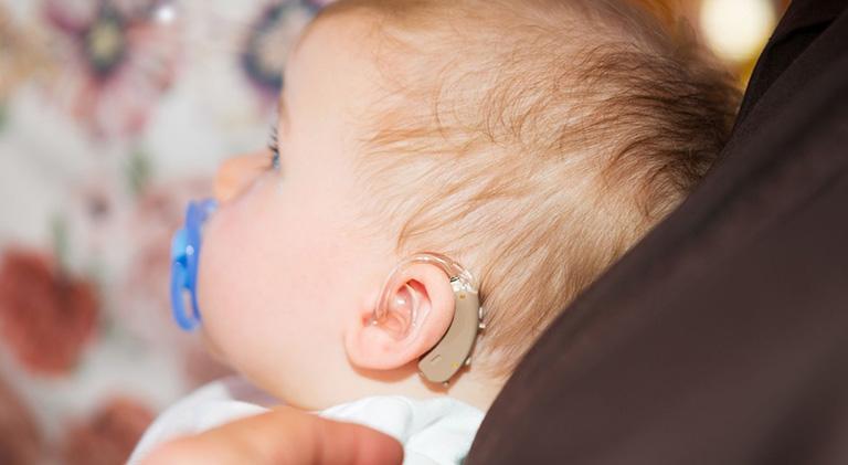 sordera del bebe